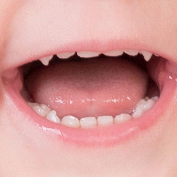A quel âge la première visite chez le dentiste?